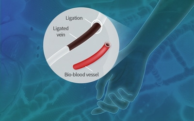 3D-Printed, Bioinspired Blood Vessels for Treatment of Ischemic Diseases